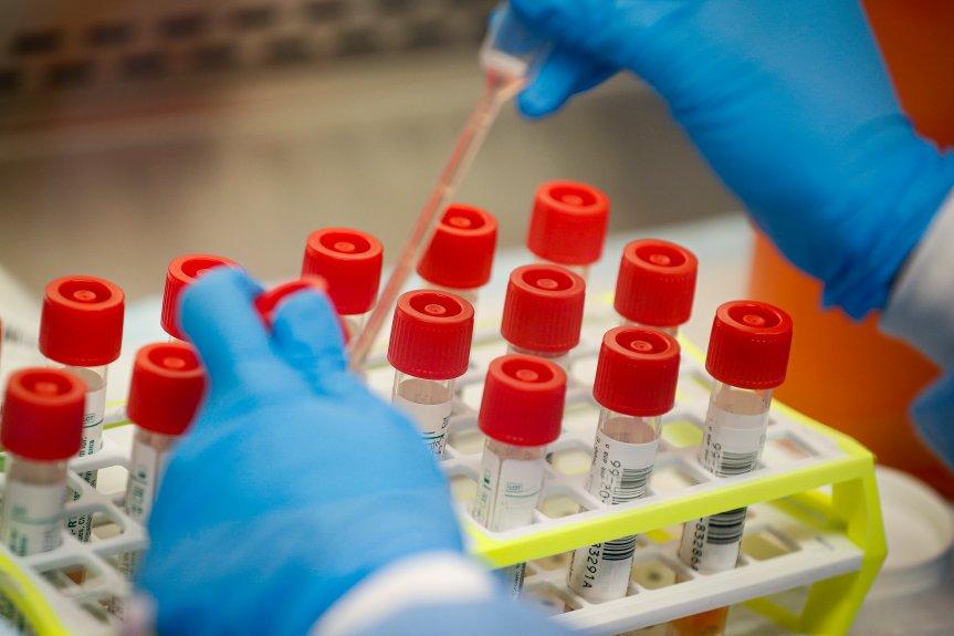 LA County reports 933 coronavirus cases, but fewer in hospital